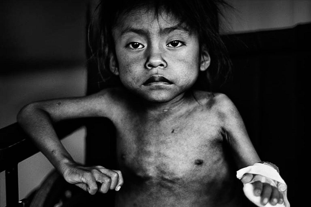Marisela ist sechseinhalb Jahre alt und wiegt nur neun Kilo. In Guatemala ist jedes zweite Kind unter fünf Jahren chronisch unterernährt - eine der höchsten Raten weltweit.